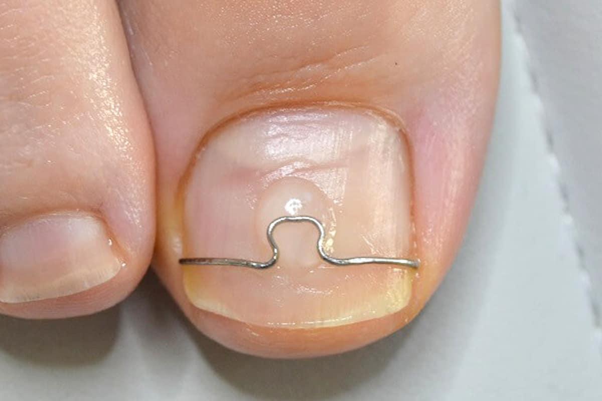 nagelbeugel
