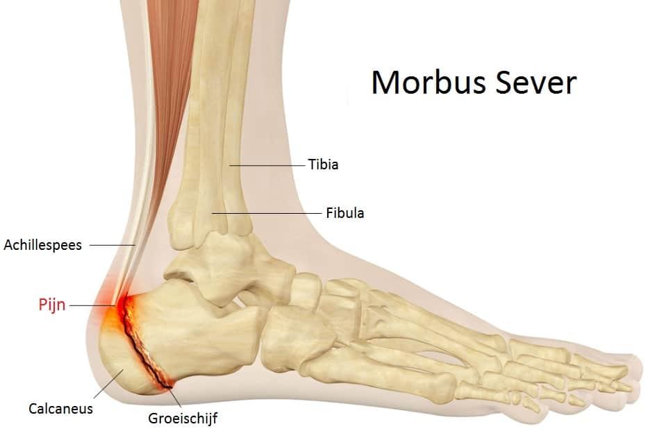 Morbus Sever